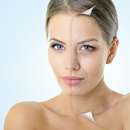 tratamiento-facial-celulas-madre